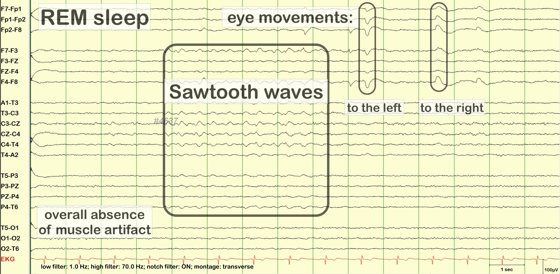 Sawtooth Waves