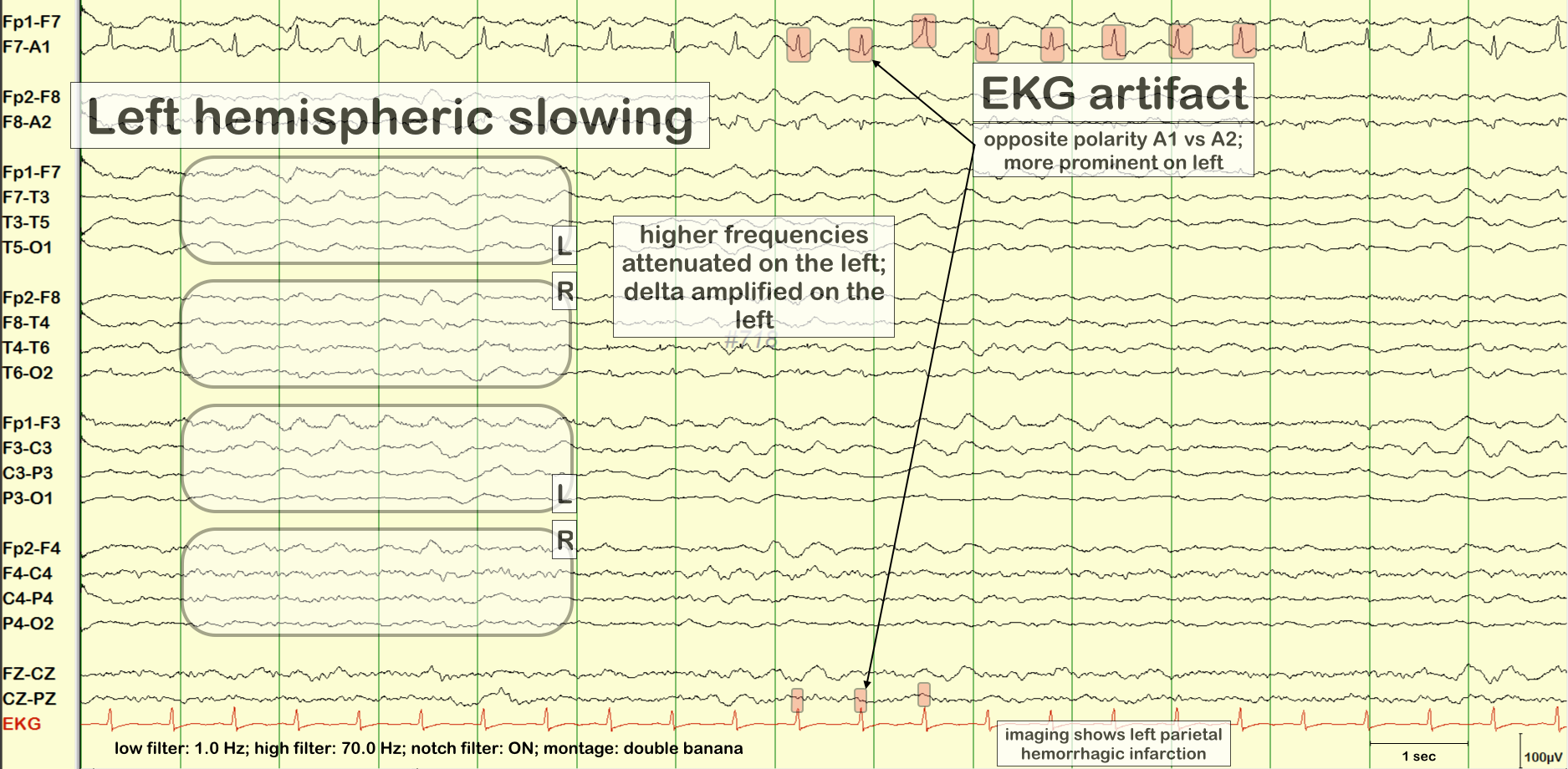 focal or lateralized slowing